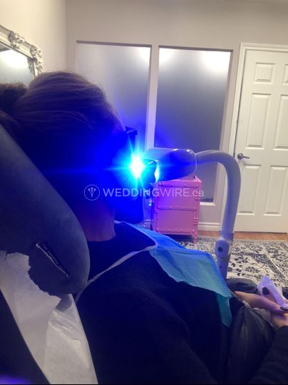 Bare Toronto - In Office + Mobile Teeth Whitening