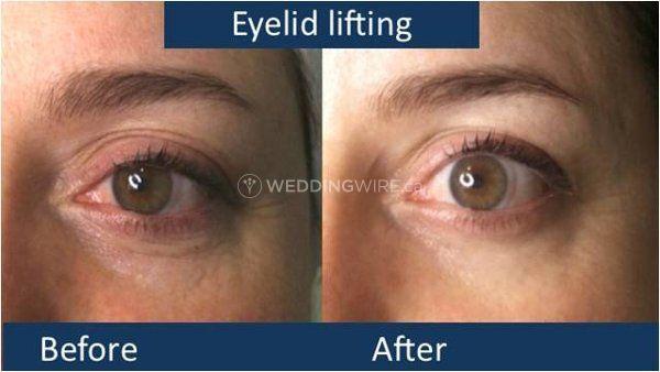 B4AF-eyelid.jpg